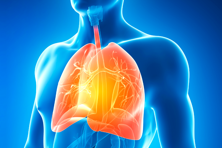 Ateneo de Cardiología - Abordaje inicial de la Hipertensión Pulmonar - Nuevas guías