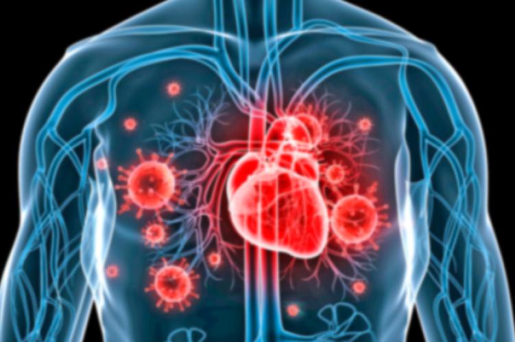 Ateneo Central Online   Endocarditis Infecciosa ¿Cuándo debemos intervenir?